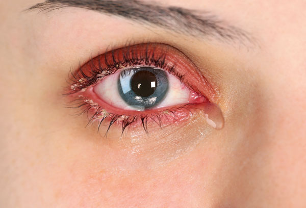 Tränen, Verkrustung, Auge